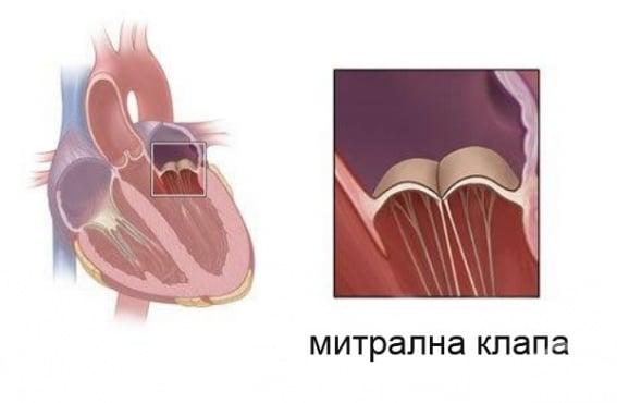 Неревматични болести на митралната клапа МКБ I34 - изображение