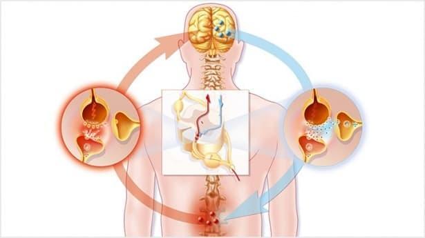 Неуточнени невралгия и неврит МКБ M79.2 - изображение