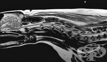 Невропатична спондилопатия МКБ M49.4 - изображение