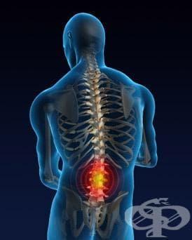Ниска кръстна болка МКБ M54.5 - изображение