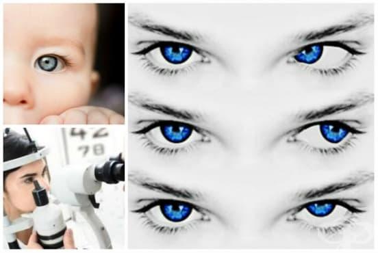 Нистагъм и други непроизволни  движения на очите МКБ H55 - изображение