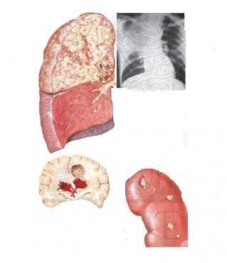 Нокардиоза МКБ A43 - изображение