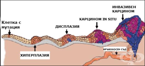 Новообразувания in situ МКБ D00-D09 - изображение