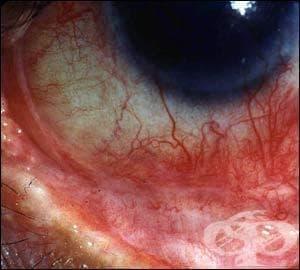 Очен пемфигоид (L12.-ї) МКБ H13.3 - изображение