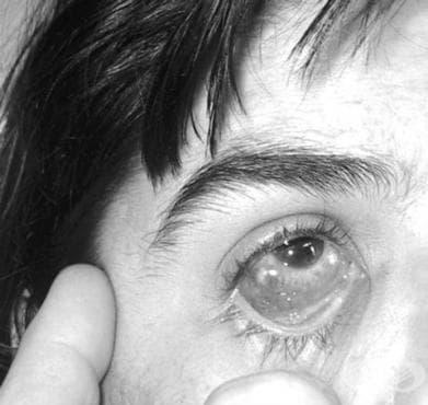 Очно-жлезна туларемия МКБ A21.1 - изображение