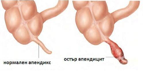 Остър апендицит МКБ K35 - изображение