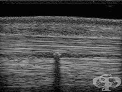 Остатъчно чуждо тяло в меките тъкани МКБ M79.5 - изображение