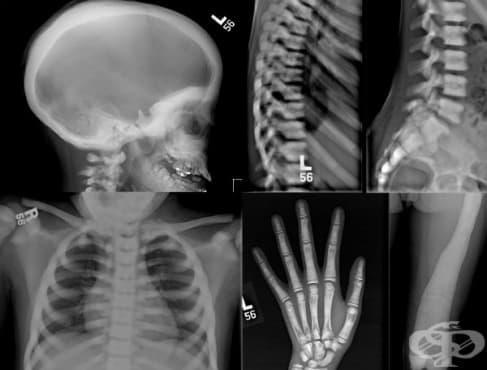 Остеопетроза МКБ Q78.2 - изображение