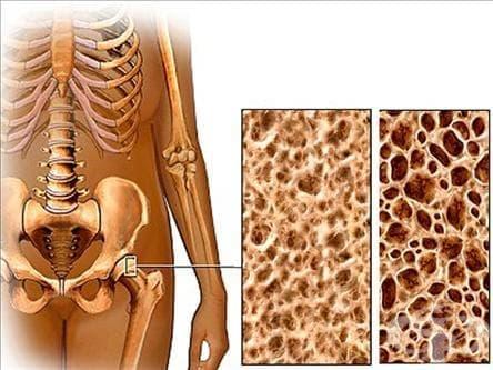 Остеопороза с патологична фрактура МКБ M80 - изображение