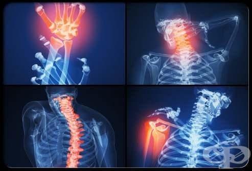 Остеопороза, неуточнена МКБ M81.9 - изображение