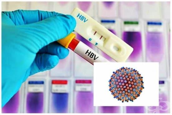 Остър хепатит В без делта агент и без хепатална кома МКБ B16.9 - изображение