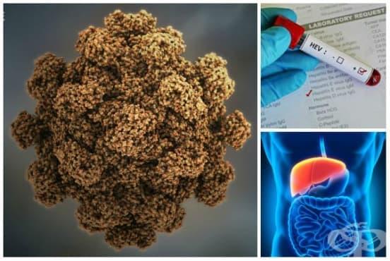 Остър хепатит Е МКБ B17.2 - изображение