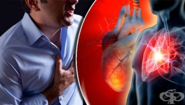 Остър инфаркт на миокарда МКБ I21 - изображение