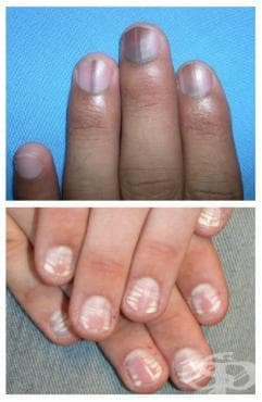 Други болести на ноктите МКБ L60.8 - изображение