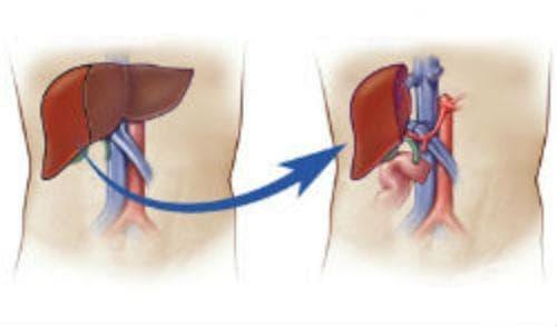 Отмиране и отхвърляне на трансплантат на черния дроб МКБ T86.4 - изображение