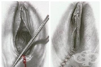 Отпускане на шевове на оперативна рана на перинеума МКБ O90.1 - изображение