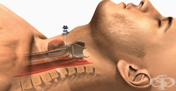 Грижа за трахеостома МКБ Z43.0 - изображение