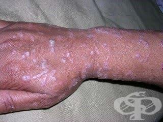 Папулосквамозни увреждания при болести, класифицирани другаде МКБ L45* - изображение