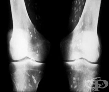 Паралитична калцификация и осификация на мускулите МКБ M61.2 - изображение