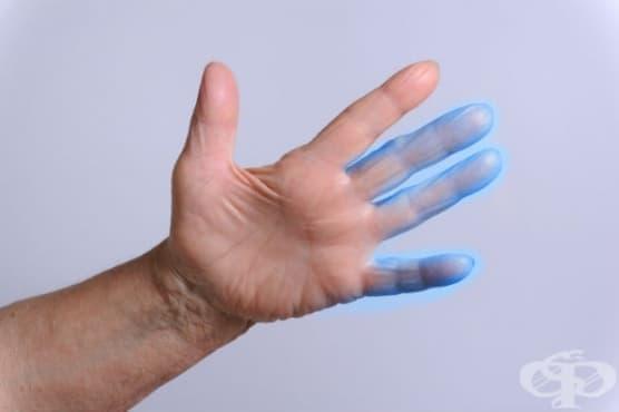 Парестезия на кожата МКБ R20.2 - изображение
