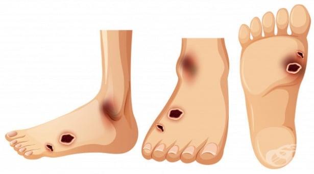 Периферна ангиопатия при болести, класифицирани другаде МКБ I79.2 - изображение