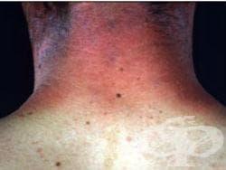 Фотоконтактен дерматит [berloque dermatitis] МКБ L56.2 - изображение