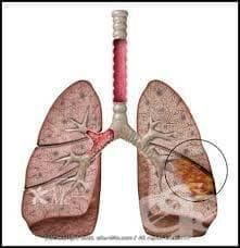 Пневмония при болести, класифицирани другаде МКБ J17* - изображение
