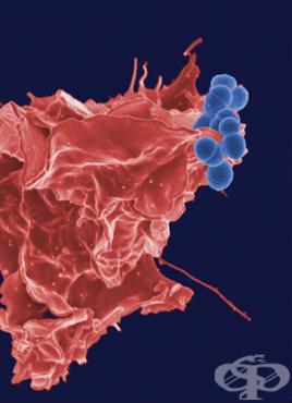 Пневмония, причинена от други стрептококи МКБ J15.4 - изображение