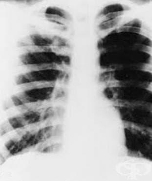 Подостра и хронична мелиоидоза МКБ A24.2 - изображение