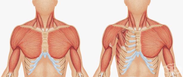 Други вродени аномалии на костно-мускулната система МКБ Q79.8 - изображение