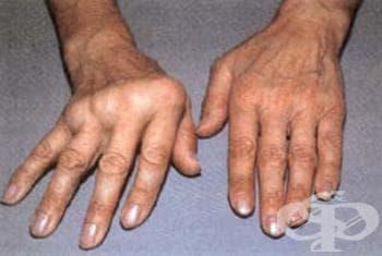 Полиартрит, неуточнен МКБ M13.0 - изображение