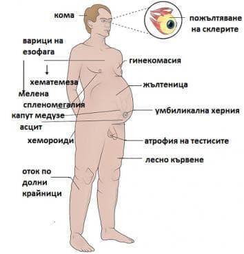Портална хипертония МКБ K76.6 - изображение