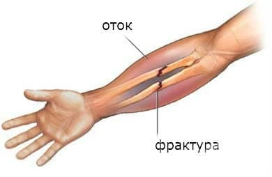 Последици от счупване на горен крайник, с изключение на китката и дланта МКБ T92.1 - изображение