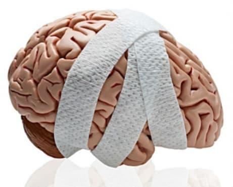 Последици от травми на главата МКБ T90 - изображение