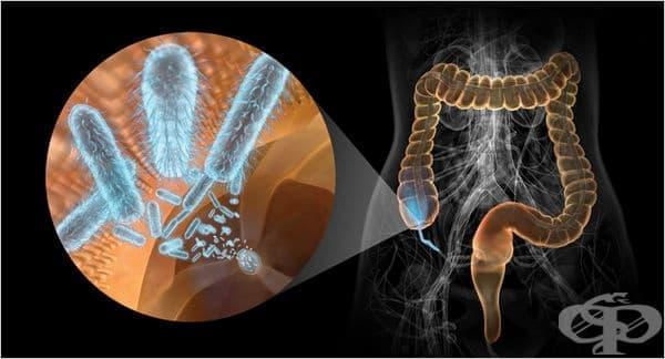 Постдизентерийна артропатия МКБ M02.1 - изображение