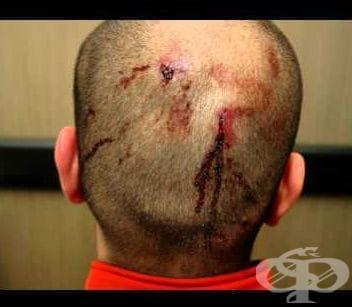 Повърхностна травма на главата МКБ S00 - изображение