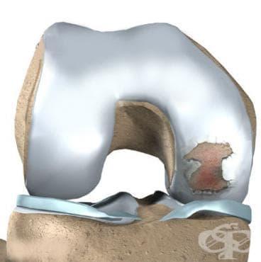 Прясно скъсване на ставния хрущял на коляното МКБ S83.3 - изображение