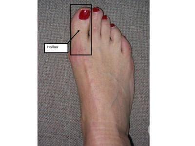 Придобити деформации на пръст(-и) на крак, неуточнени МКБ M20.6 - изображение