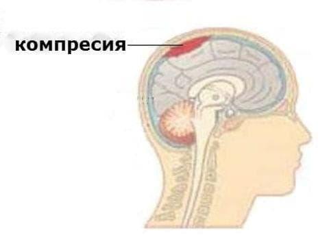 Притискане на главния мозък МКБ G93.5 - изображение