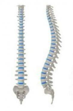 Притискане на нервни коренчета и плексуси при други дорзопатии (М45-М46ї, М48.-ї, М53-М54ї) МКБ G55.3 - изображение