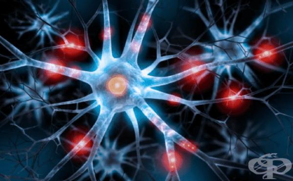 Идиопатична прогресираща невропатия МКБ G60.3 - изображение