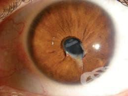 Проникваща рана в очната ябълка без чуждо тяло МКБ S05.6 - изображение