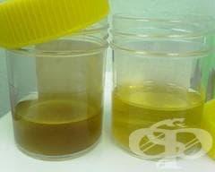 Изолирана протеинурия с уточнено морфологично увреждане МКБ N06 - изображение