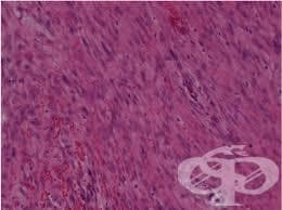 Псевдосаркоматозна (пролиферативна) фиброматоза МКБ M72.4 - изображение