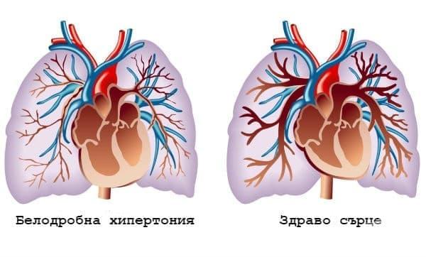 Първична белодробна хипертония МКБ I27.0 - изображение