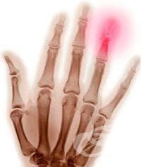 Други остеопатии МКБ M86-M90 - изображение