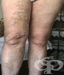 Варикозни вени на долните крайници с възпаление МКБ I83.1 - изображение