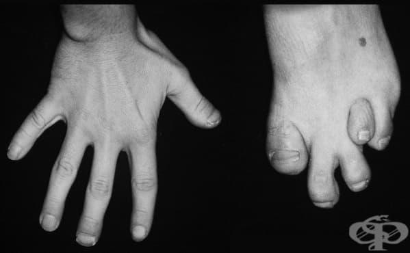 Болест на Refsum МКБ G60.1 - изображение