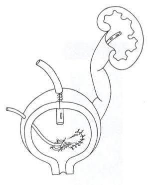 Вроден мегауретер МКБ Q62.2 - изображение