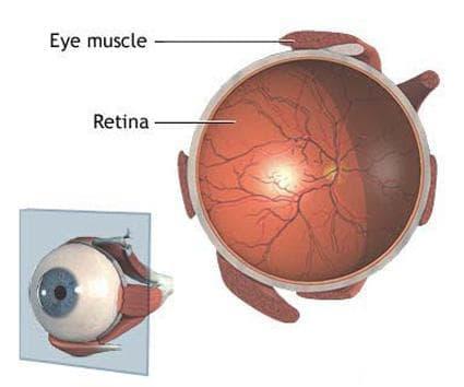Оклузия на съдовете на ретината МКБ H34 - изображение